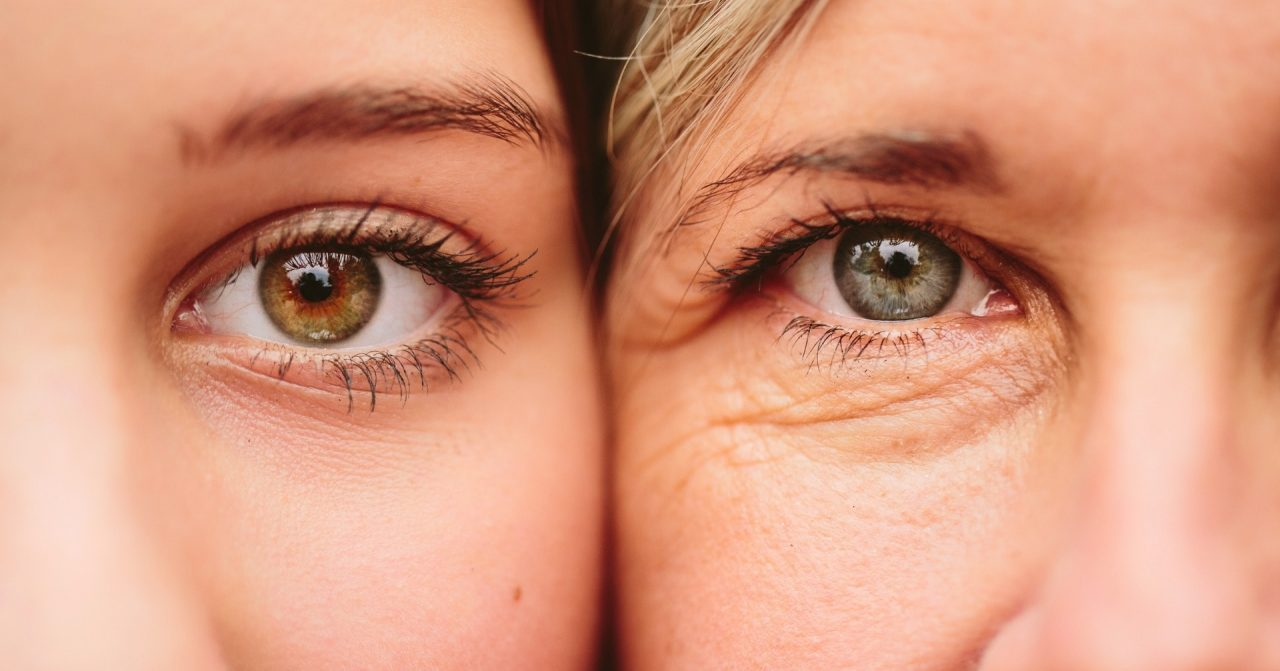 6 TIP xóa bỏ nếp nhăn dưới bọng mắt nhanh chóng cho chị em